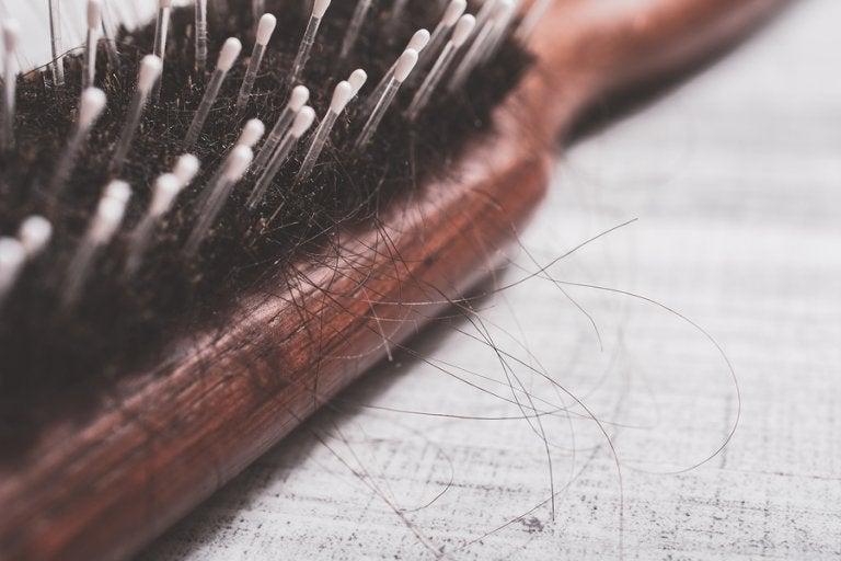 Tratar la alopecia de forma natural