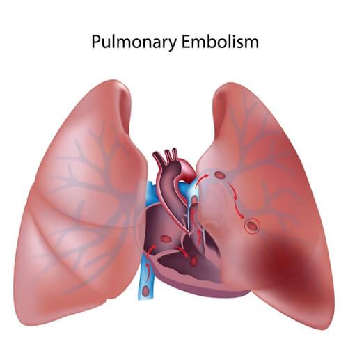 Todo lo que debes saber sobre la tromboembolia pulmonar