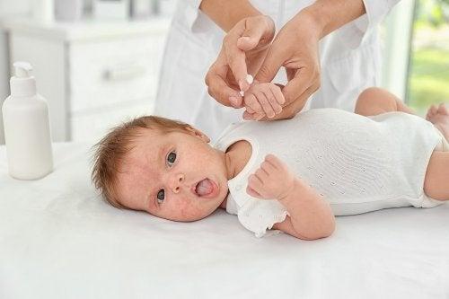 Acné en el bebé: causas y tratamientos