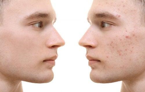 Cúrcuma para el acné: beneficios y modo de uso