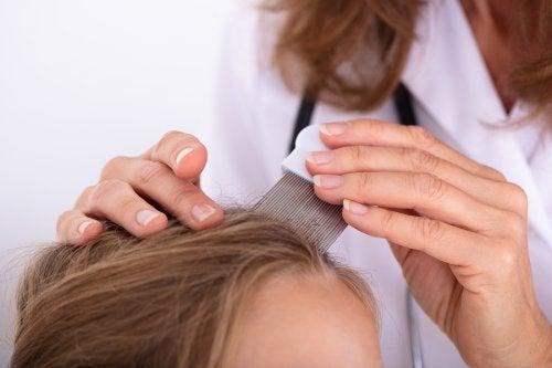 Aspectos previos al teñir un cabello con psoriasis