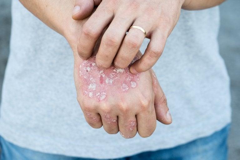 5 tratamientos herbales tópicos para la psoriasis