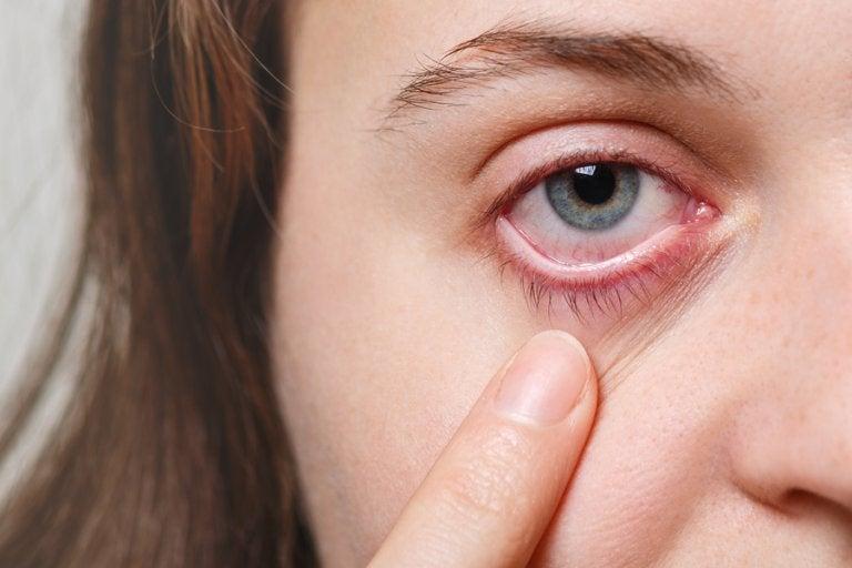 5 remedios para las infecciones oculares eficaces