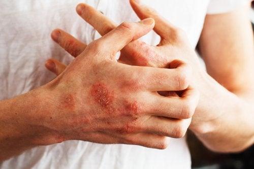 Alimentos para controlar la psoriasis: recomendaciones