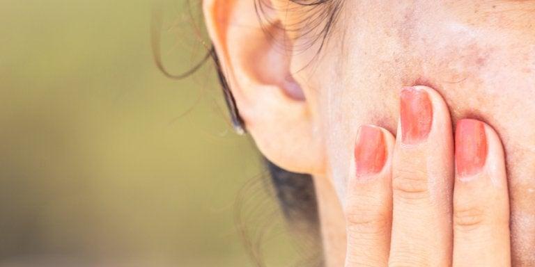 Remedios para atenuar las manchas: 5 alternativas
