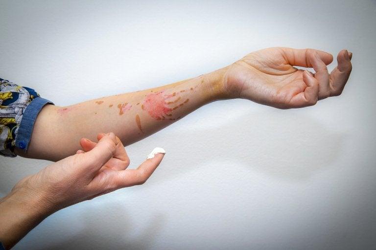 ¿Cómo calmar el ardor de las quemaduras? 5 remedios que te ayudan