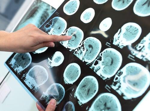 Trastorno neurocognitivo mayor