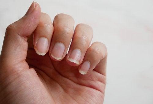 ¿Cómo endurecer las uñas naturalmente? 5 consejos
