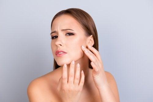 5 consejos para atenuar las cicatrices del acné