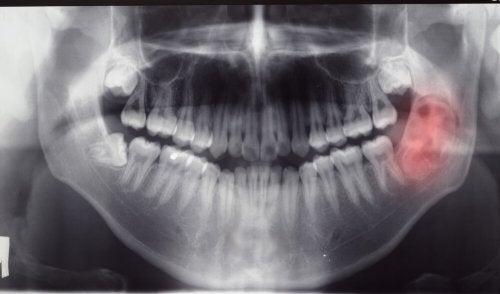 Diagnóstico de los tumores y quistes mandibulares