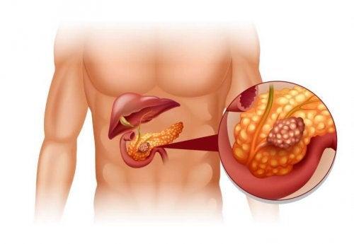 Tratamiento de tumores neuroendocrinos de páncreas