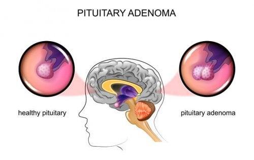 Tumores pituitarios: causas y síntomas