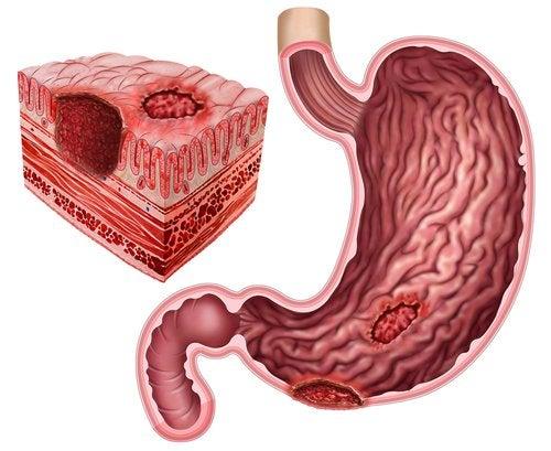 Úlcera péptica y Helicobacter pylori
