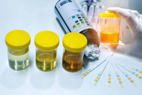 Proteínas en la orina: síntomas, causas y tratamiento