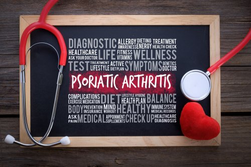 Artritis psoriásica: diagnóstico y tratamiento