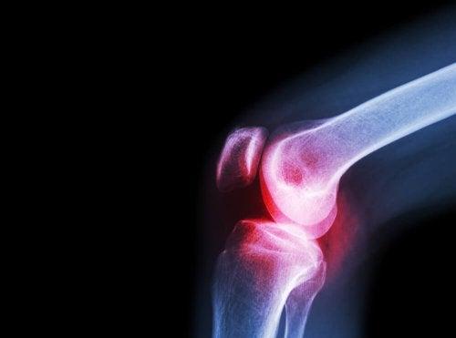Artritis séptica: síntomas y causas