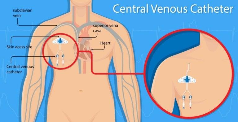 Perforación vascular por catéter venoso central