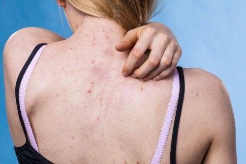 Consejos para prevenir las enfermedades cutáneas