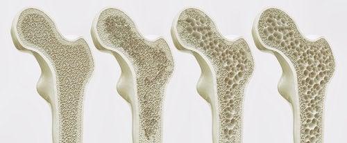 Osteoporosis, ¿cuáles son sus complicaciones?