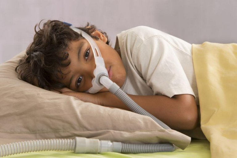 Síndrome de apnea obstructiva del sueño en niños