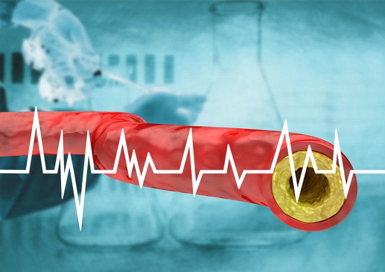 ¿Cómo debes comer para controlar el colesterol alto?