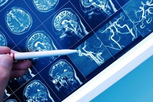 Demencia vascular, ¿en qué consiste?
