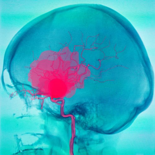 Hemorragia subdural o subaracnoidea