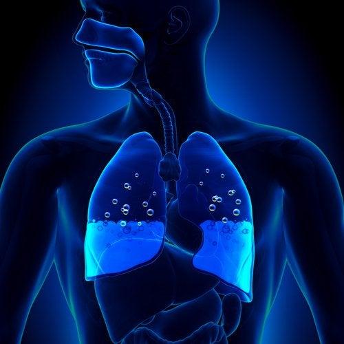 Edema pulmonar, ¿cuáles son sus síntomas y causas?