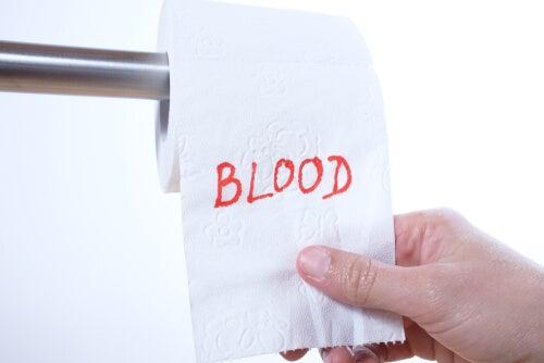Sangre en las heces, ¿por qué ocurre?