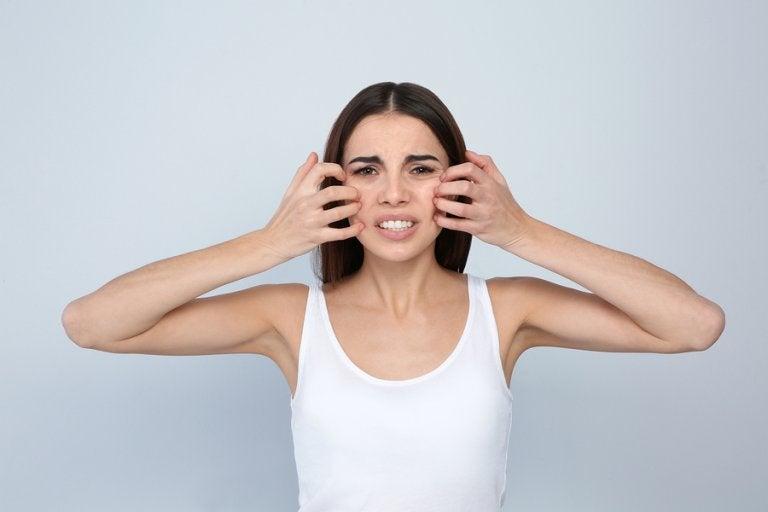 Dermatitis perioral: síntomas y tratamientos