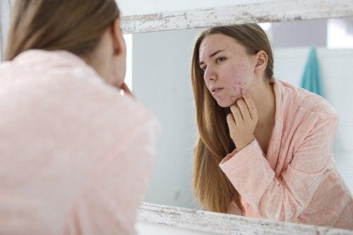 Acné hormonal: causas y tratamientos