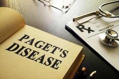 Enfermedad de Paget: todo lo que debes saber