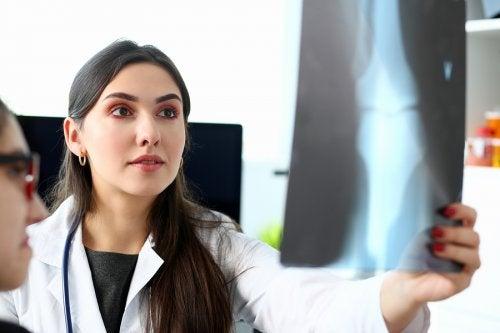 Osteosarcoma, ¿qué es y cómo se trata?