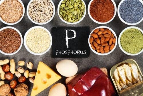 Hiperfosfatemia: altas concentraciones de fosfato en la sangre