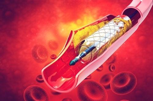 ¿Qué es un stent y para qué sirve?
