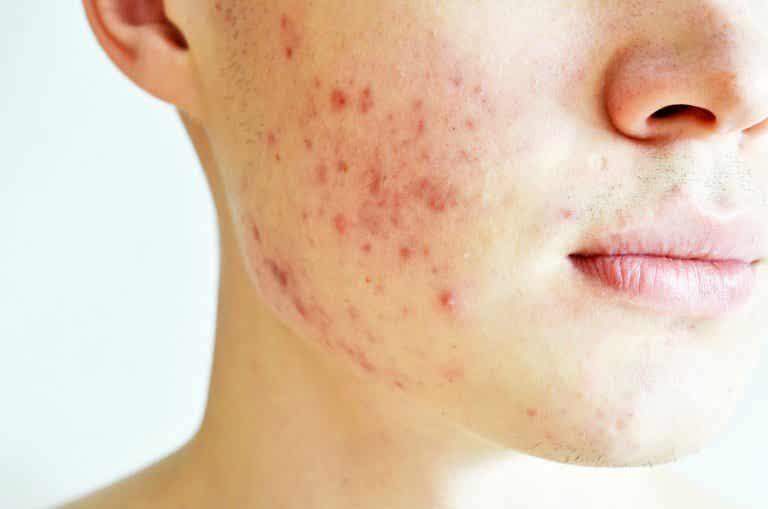 ¿Qué es el acné quístico?