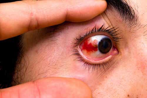 Manchas rojas en los ojos: ¿por qué se producen?